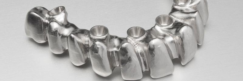 implantatgetragene-multi-unit-bruecke-01-Imp_1